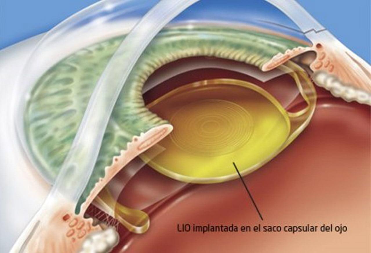 Qué tipos de lentes intraoculares hay y cuál es el mejor para mí