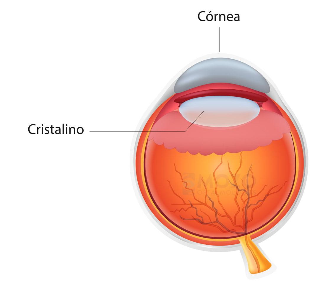 Cirugía refractiva: La solución para dejar de usar gafas.
