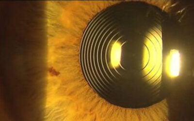 Cirugía refractiva: La solución para dejar de usar gafas